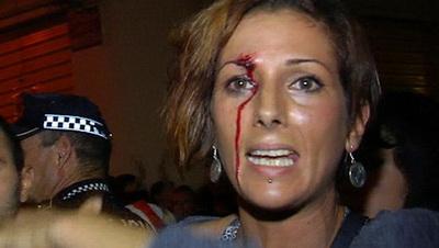 manifestante agredida em Algemesi